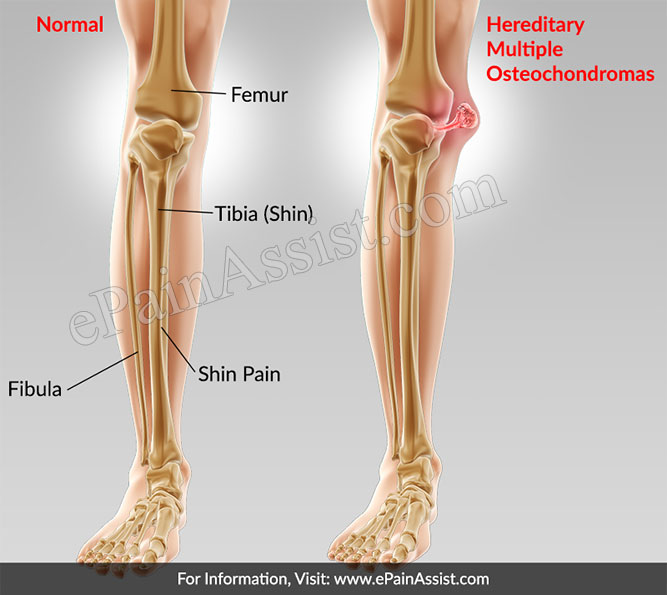 What Is Hereditary Multiple Osteochondromas?