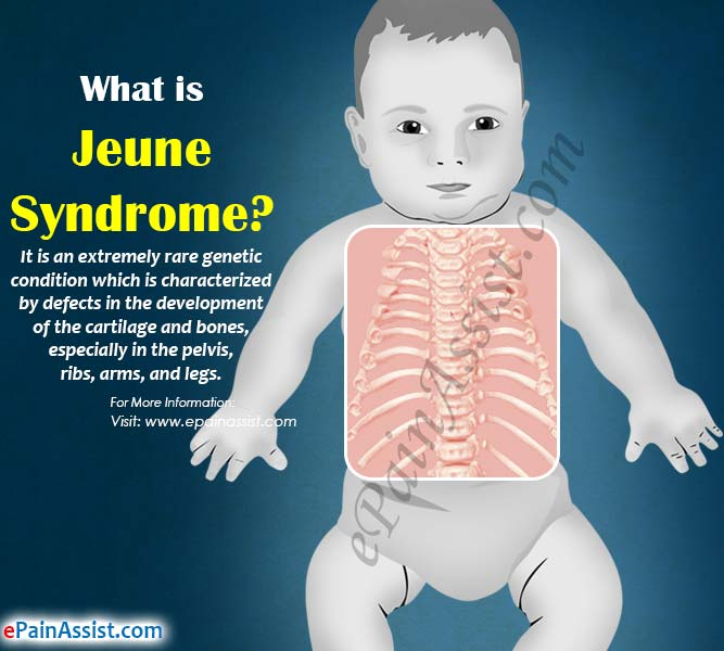 What is Jeune Syndrome?