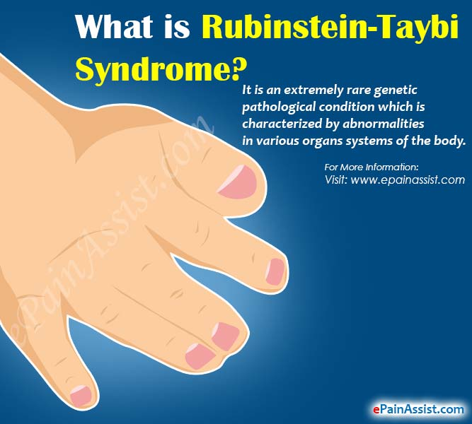What is Rubinstein-Taybi Syndrome?