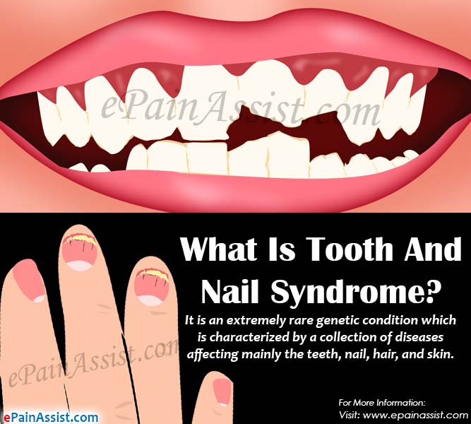 What Is Tooth And Nail Syndrome?