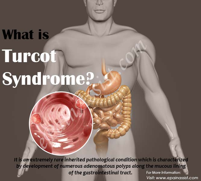 What is Turcot Syndrome?