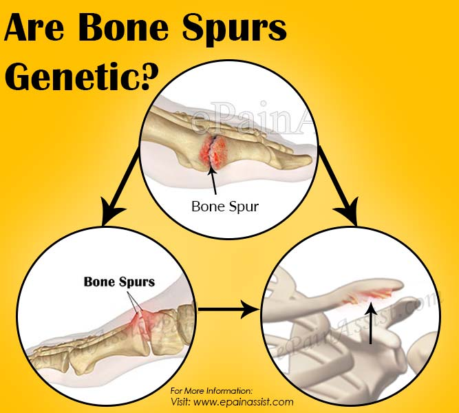 Are Bone Spurs Genetic?