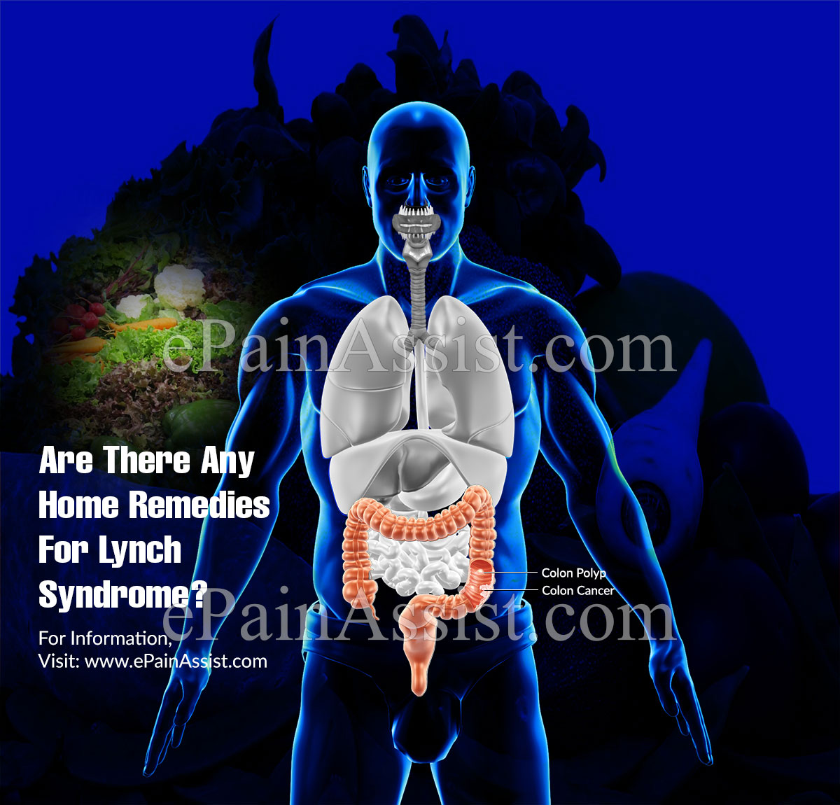 Are There Any Home Remedies For Lynch Syndrome?