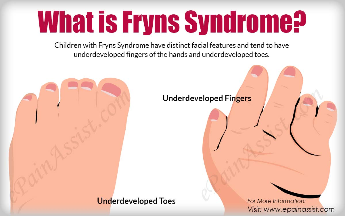 What is Fryns Syndrome?