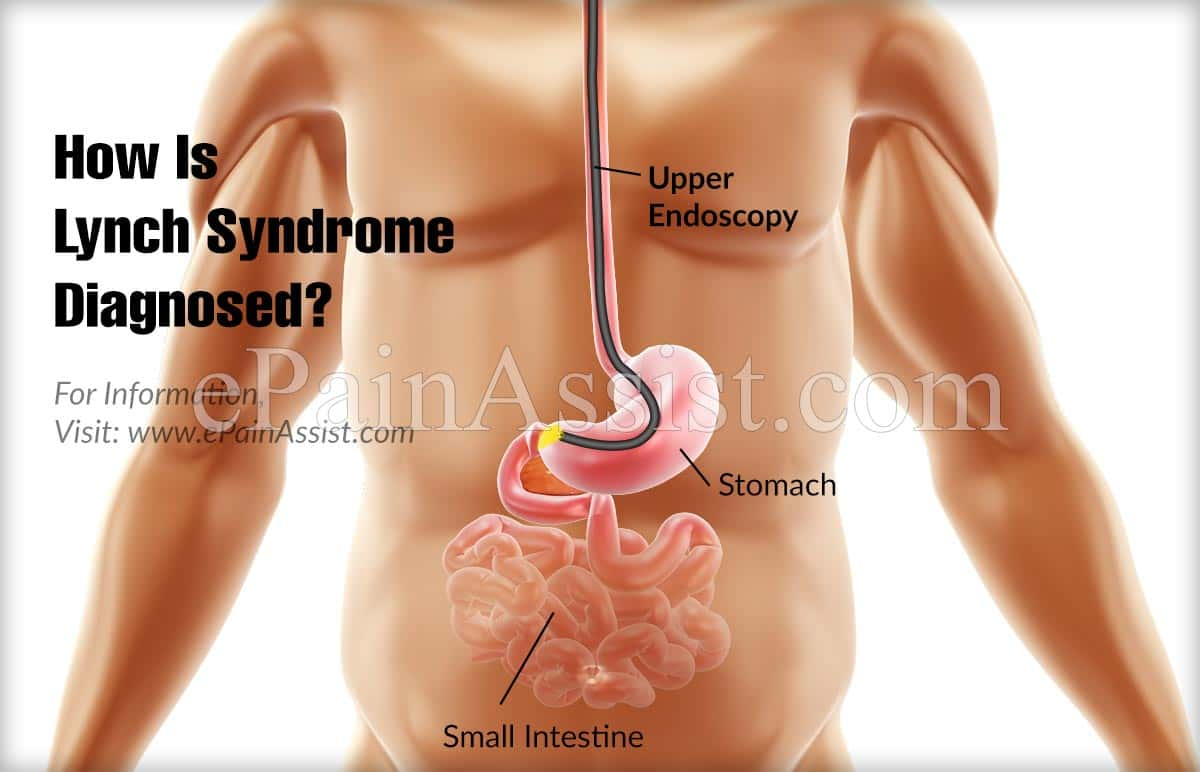 How Is Lynch Syndrome Diagnosed?