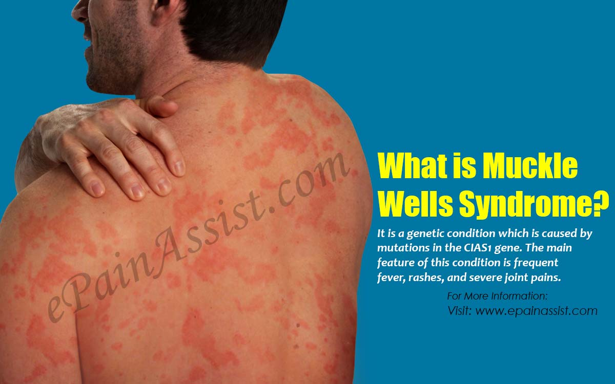 What is Muckle Wells Syndrome?