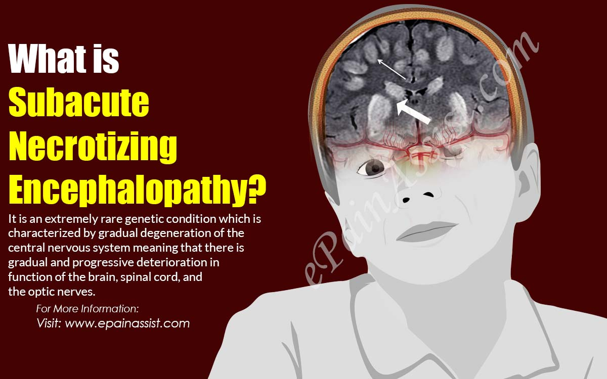 What is Subacute Necrotizing Encephalopathy?