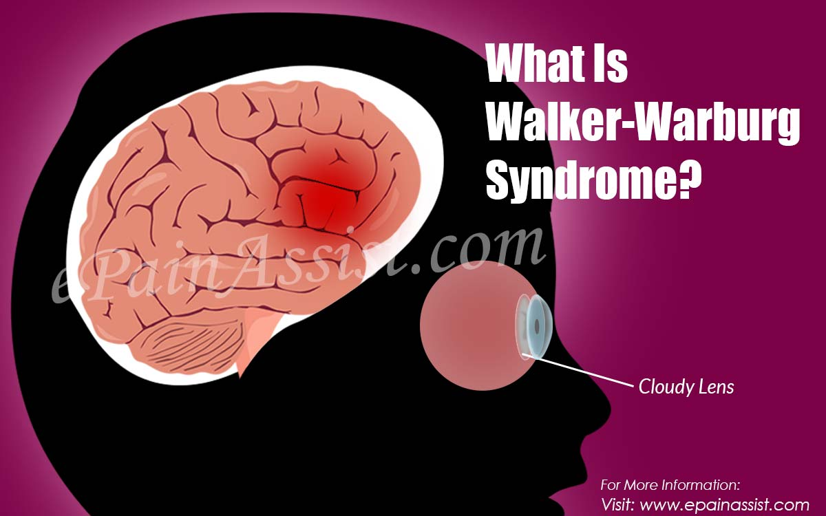 What Is Walker-Warburg Syndrome?