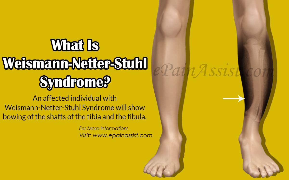 What Is Weismann-Netter-Stuhl Syndrome?