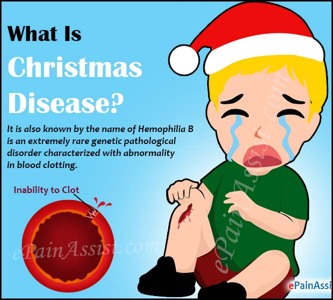 What Is Christmas Disease or Hemophilia B?
