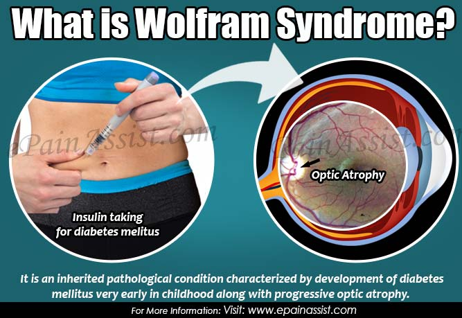 What is Wolfram Syndrome?