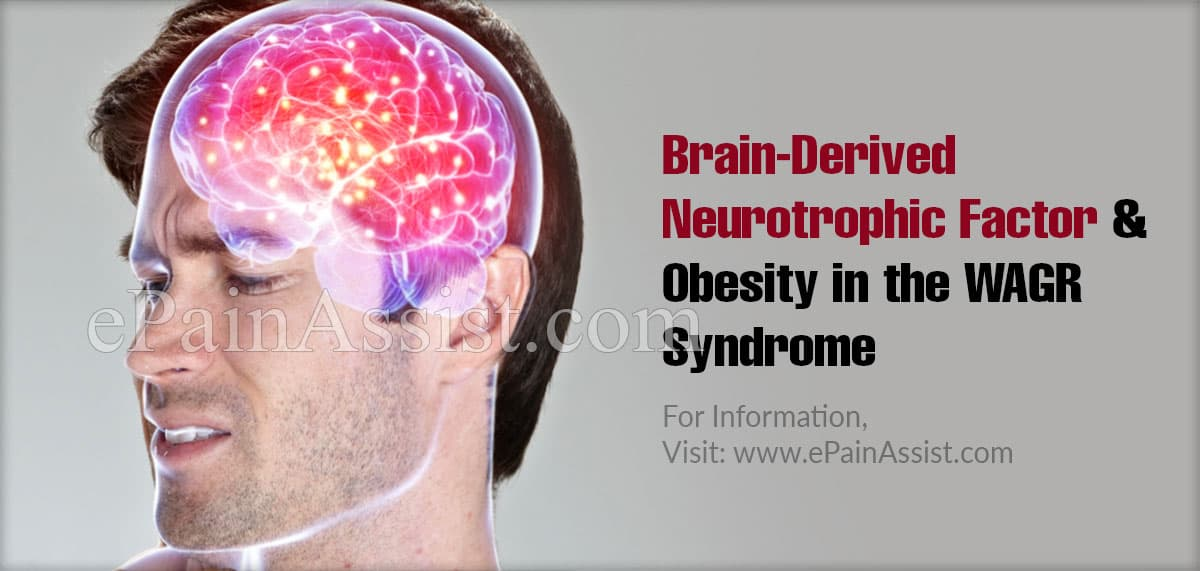 Brain-Derived Neurotrophic Factor and Obesity in the WAGR Syndrome