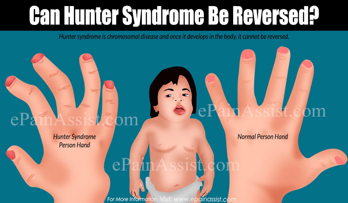 Can Hunter Syndrome Be Reversed?