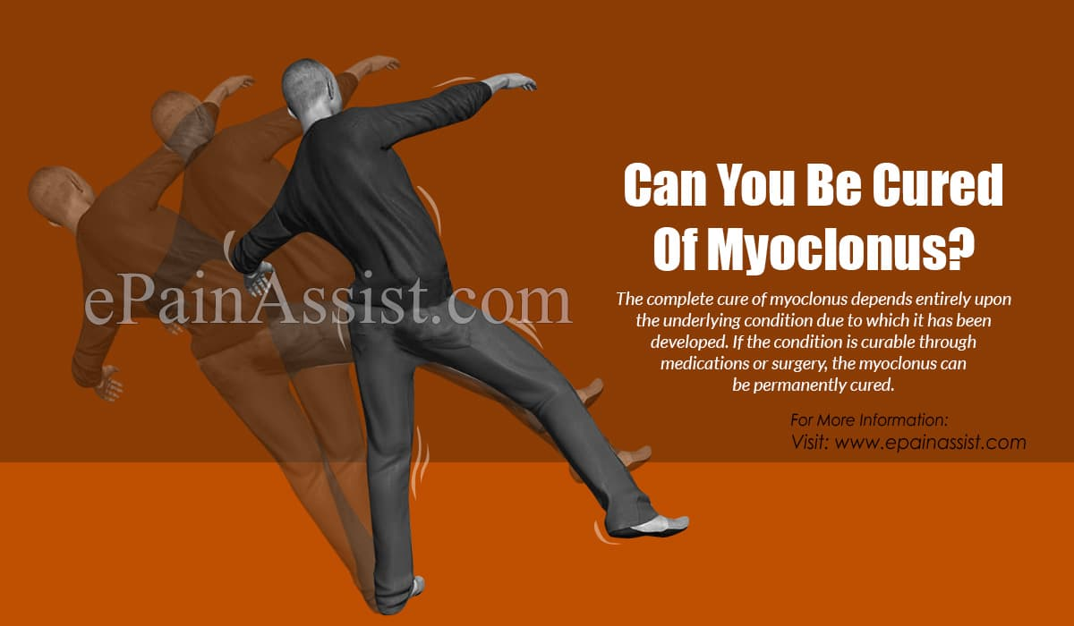 Can You Be Cured Of Myoclonus?