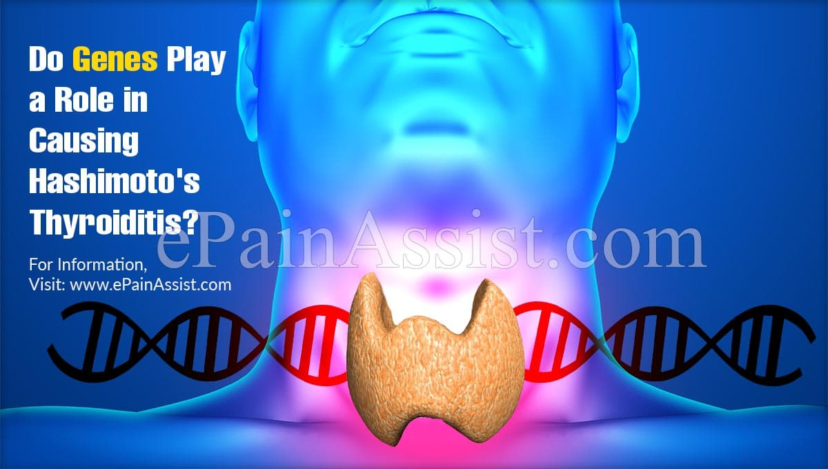 Do Genes Play a Role in Causing Hashimoto's Thyroiditis?