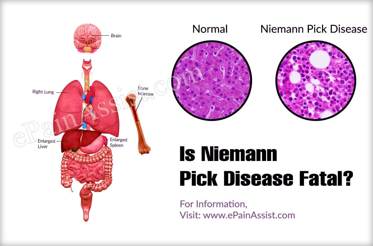 Is Niemann Pick Disease Fatal?