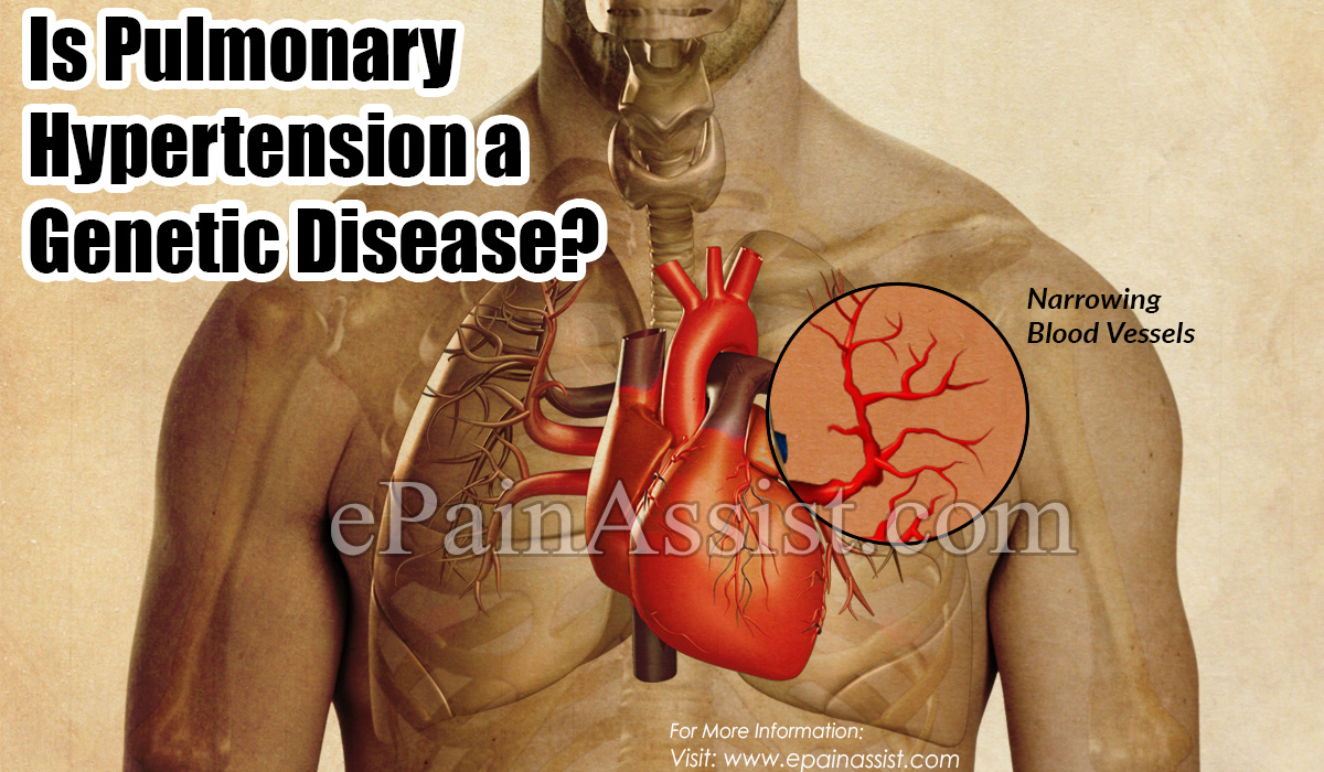 Is Pulmonary Hypertension a Genetic Disease?