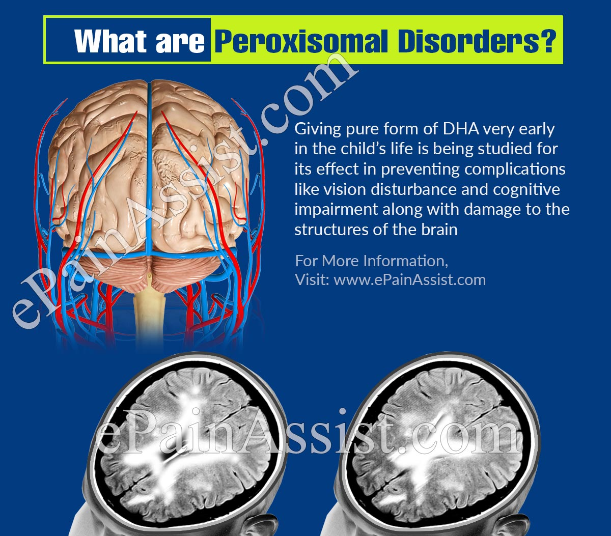 What are Peroxisomal Disorders?