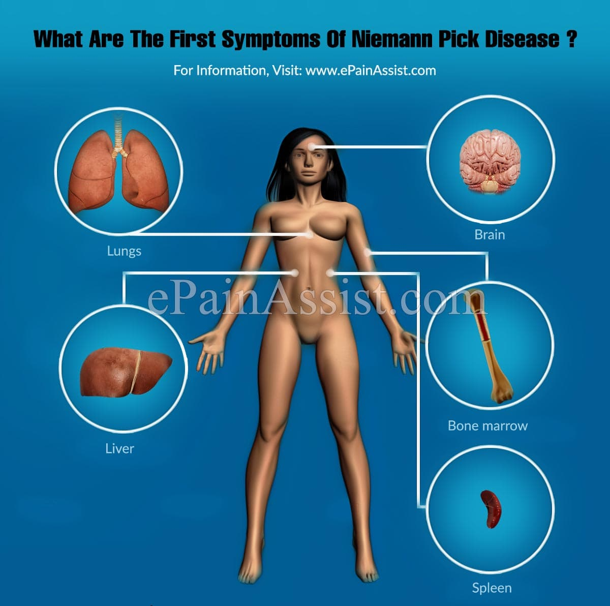 What Are The First Symptoms Of Niemann Pick Disease?