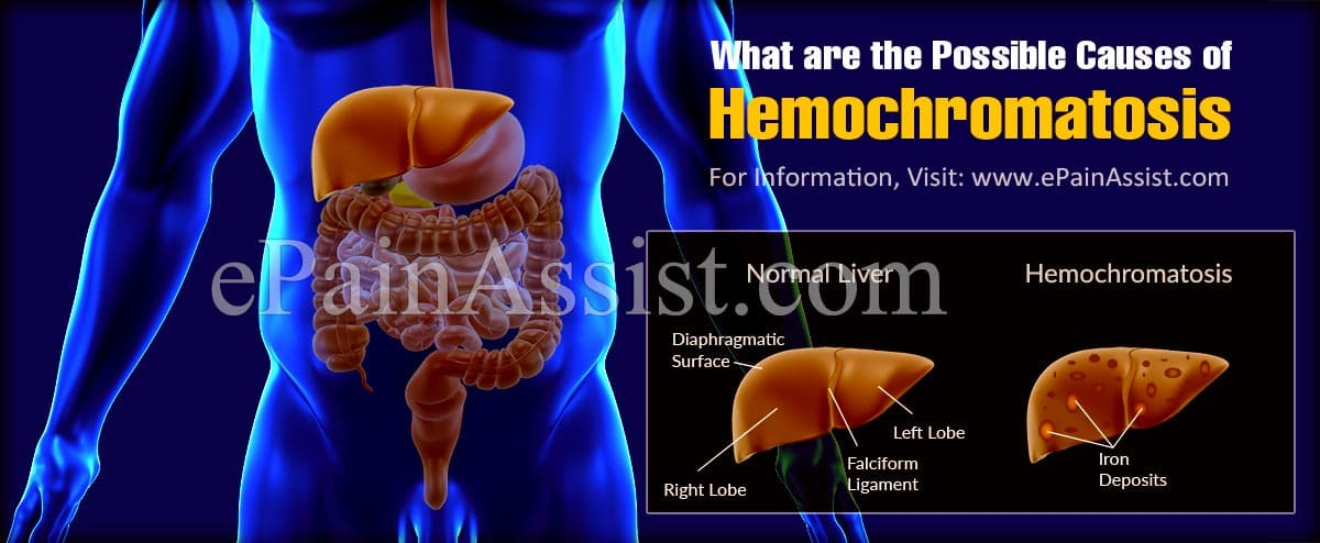 What are the Possible Causes of Hemochromatosis?