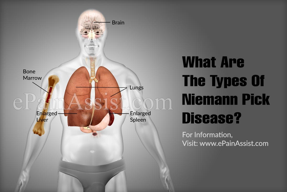 What Are The Types Of Niemann Pick Disease?