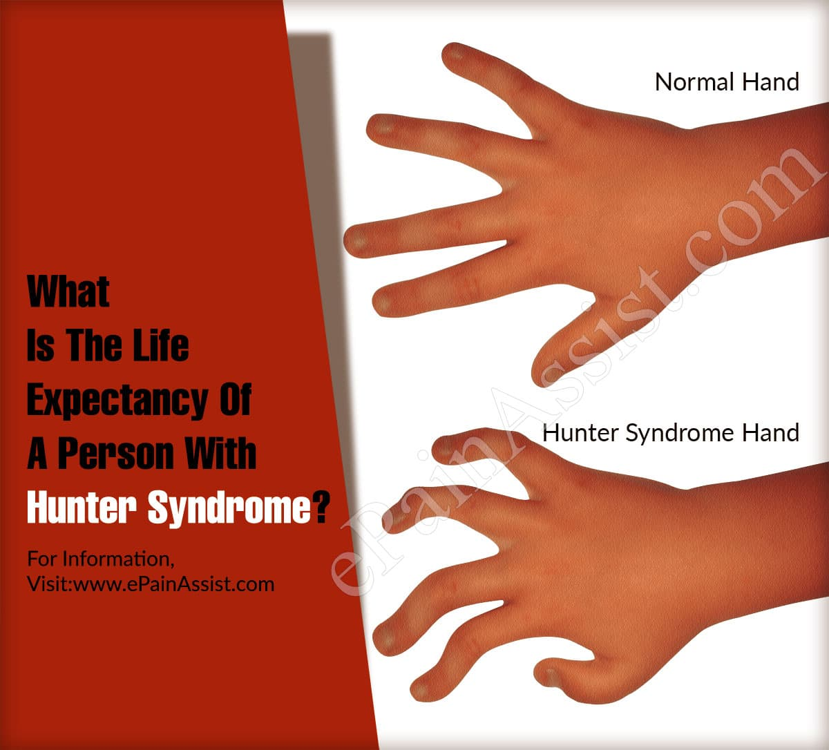 What Is The Life Expectancy Of A Person With Hunter Syndrome?