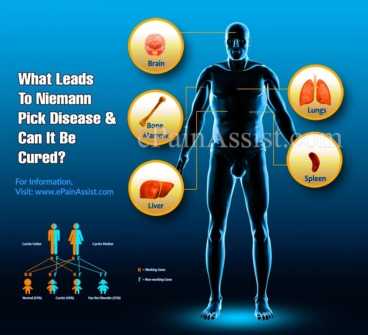What Leads To Niemann Pick Disease & Can It Be Cured?