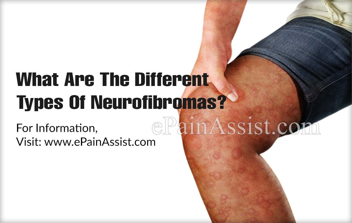 What Are The Different Types Of Neurofibromas?