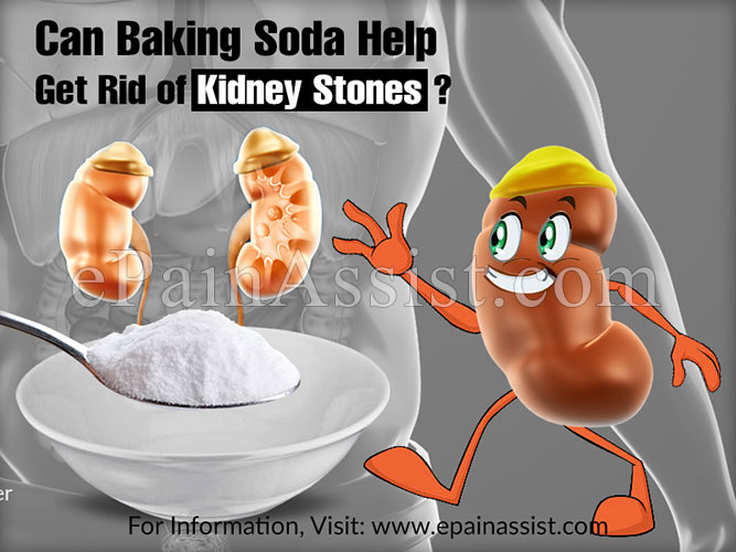 Can Baking Soda Help Get Rid Of Kidney Stones
