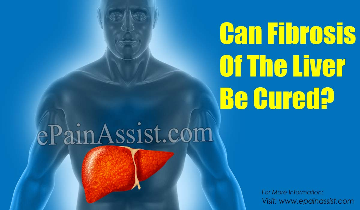 Can Fibrosis Of The Liver Be Cured?