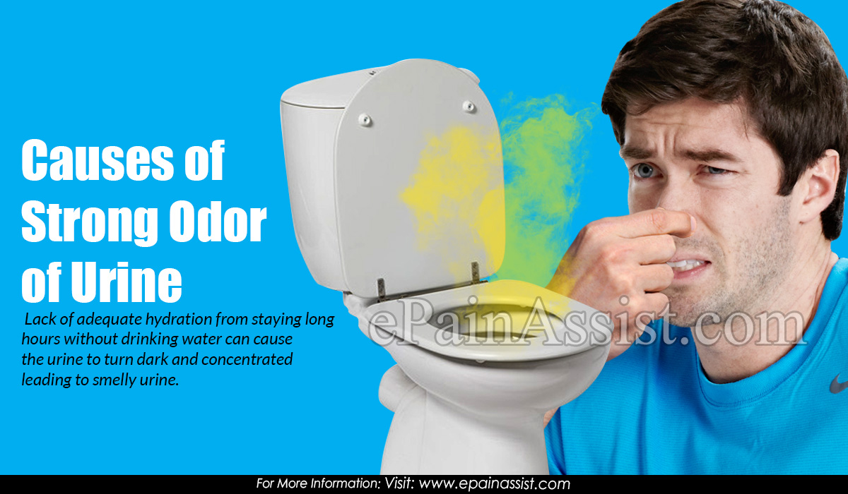 Causes of Strong Odor of Urine