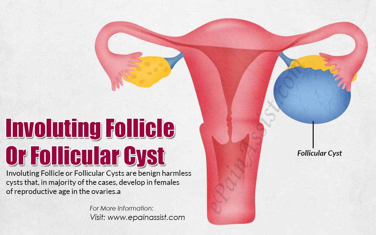 involuting follicle or follicular cyst causes symptoms treatment