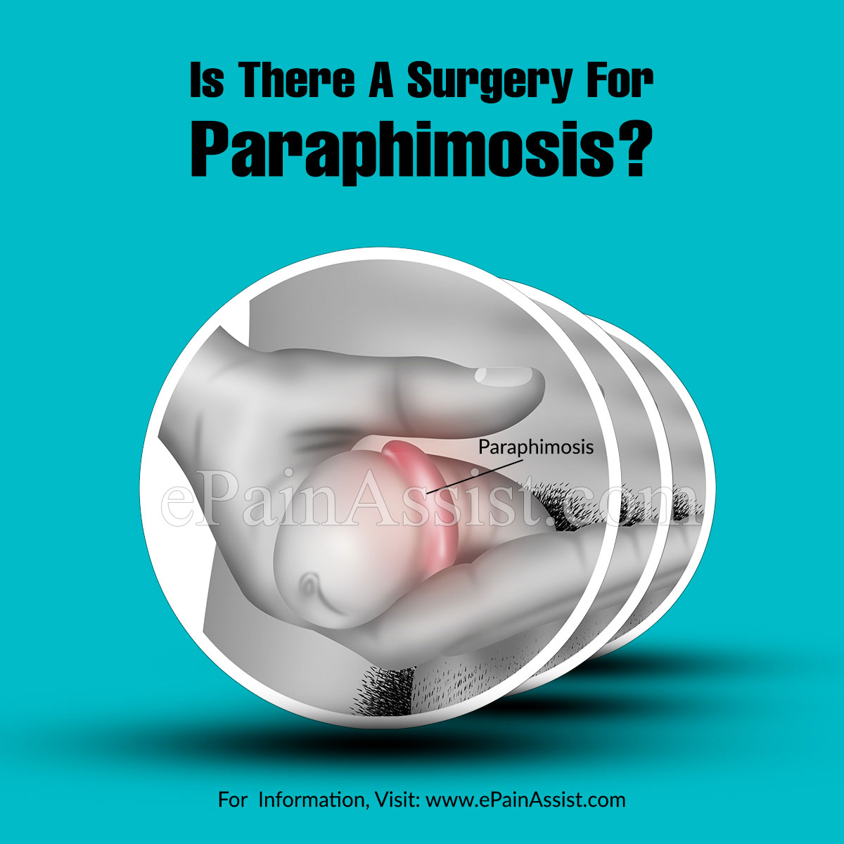 Is There A Surgery For Paraphimosis?