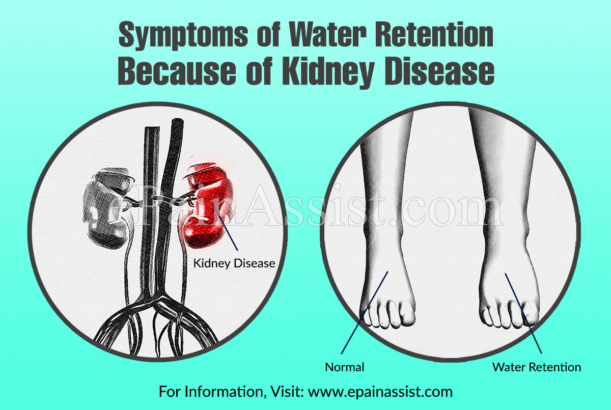 Symptoms Causes Of Water Retention Because Of Kidney Disease