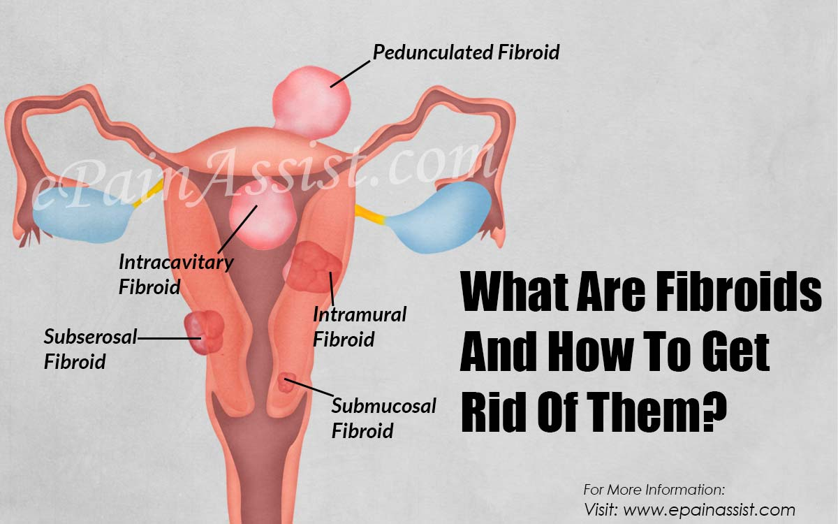 What Are Fibroids And How To Get Rid Of Them?