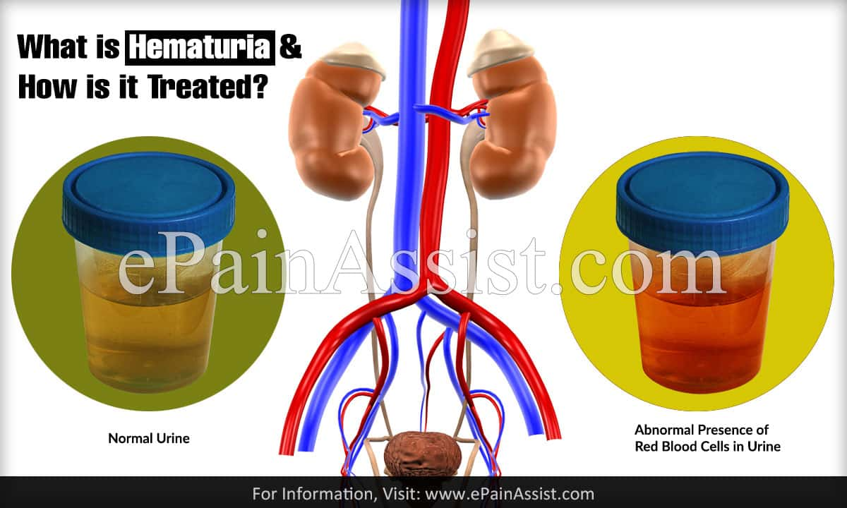 What is Hematuria & How is it Treated?