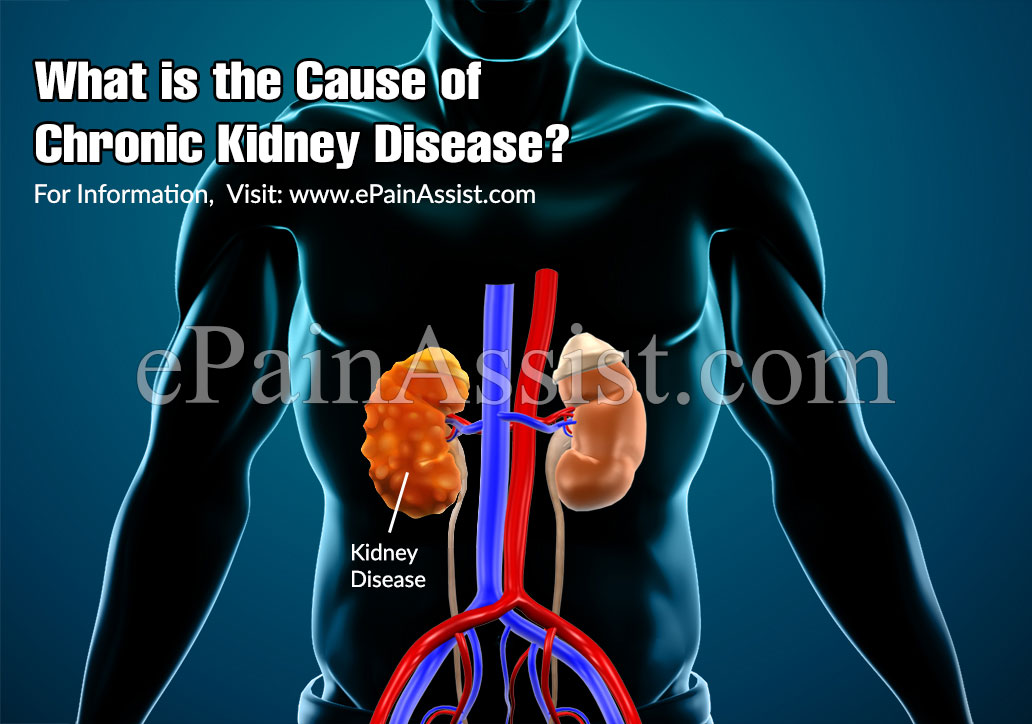 What is the Cause of Chronic Kidney Disease or CKD?