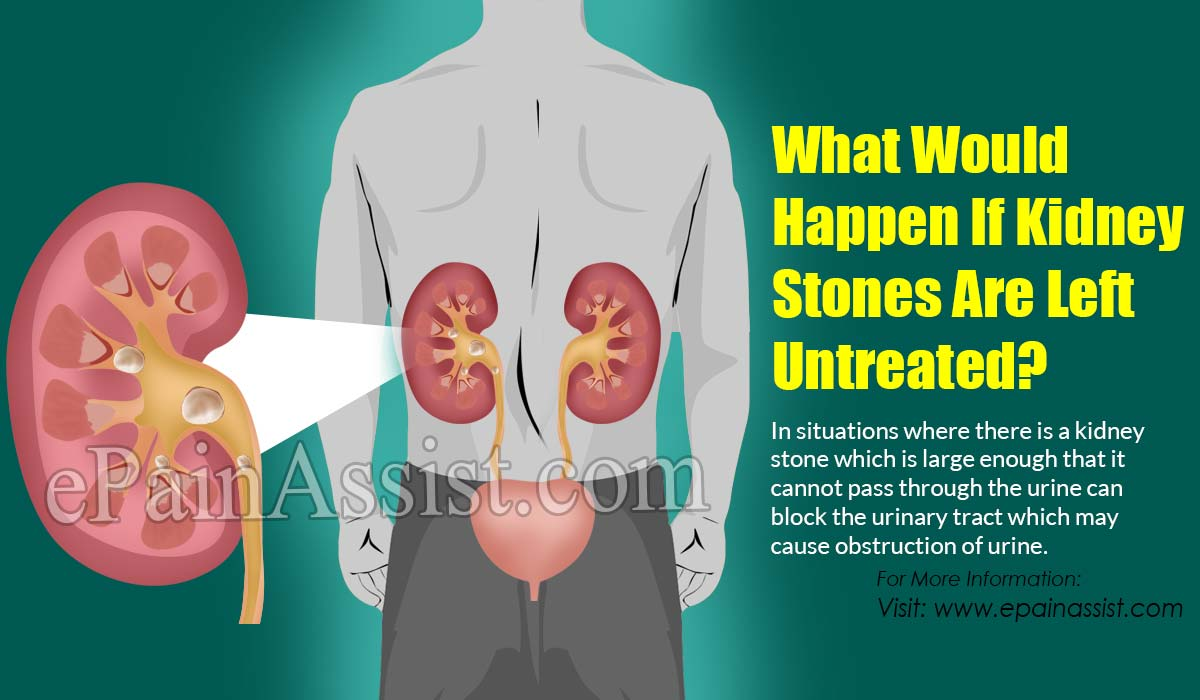 What Would Happen If Kidney Stones Are Left Untreated?