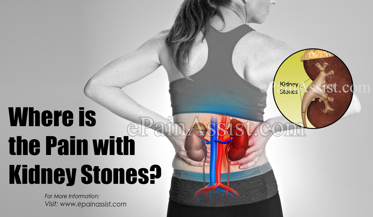 Where Is The Pain With Kidney Stones?