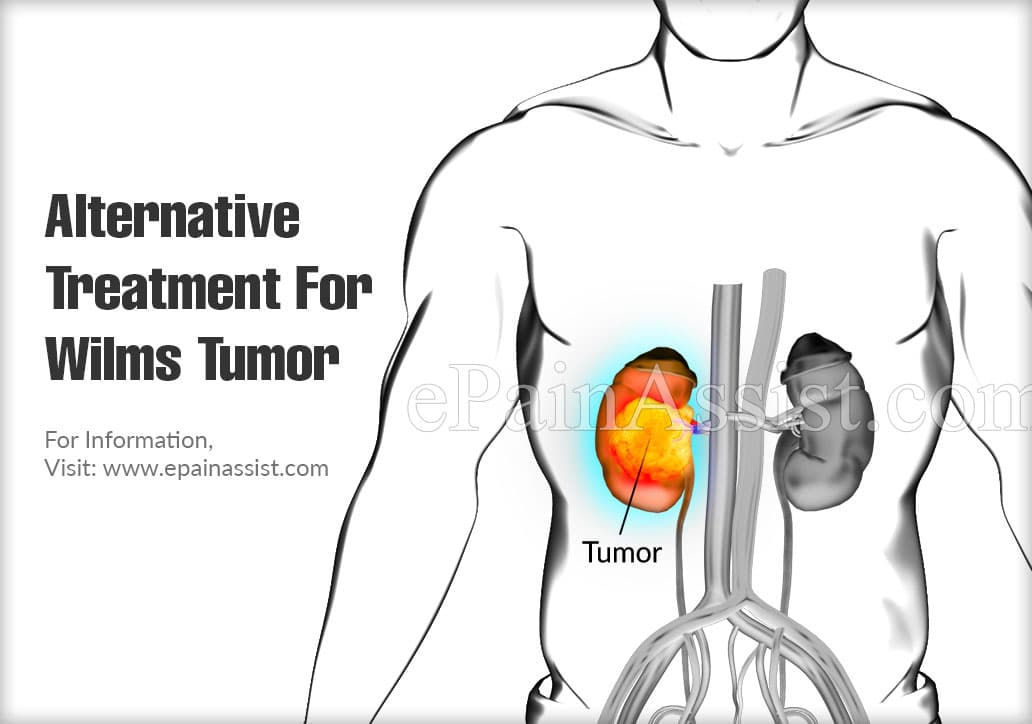 Alternative Treatment For Wilms Tumor