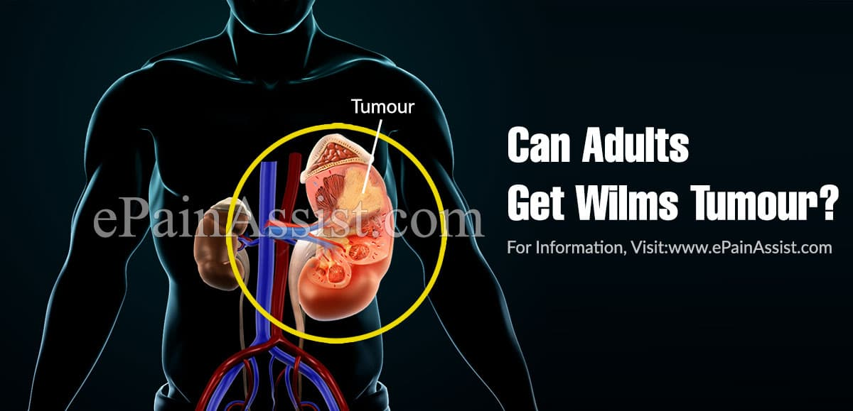 Can Adults Get Wilms Tumour?