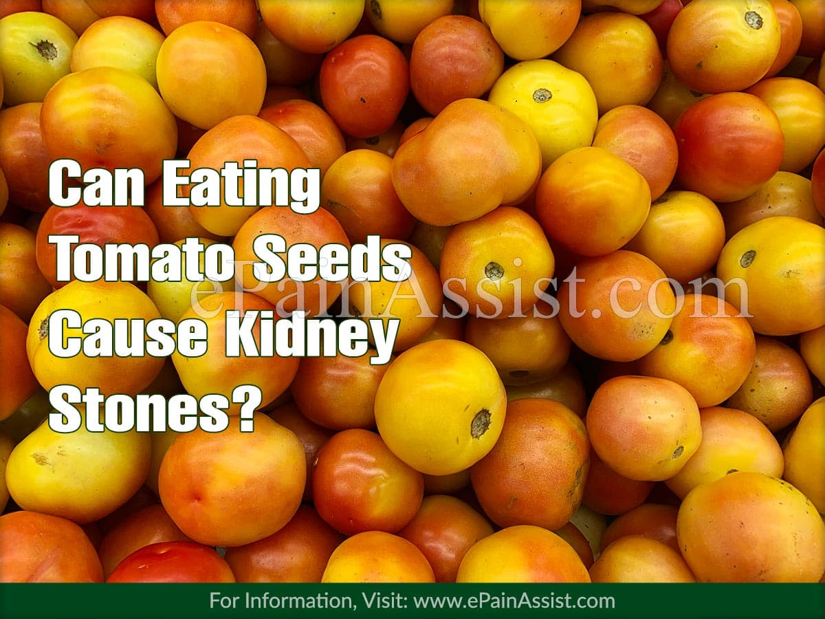 Can Eating Tomato Seeds Cause Kidney Stones?