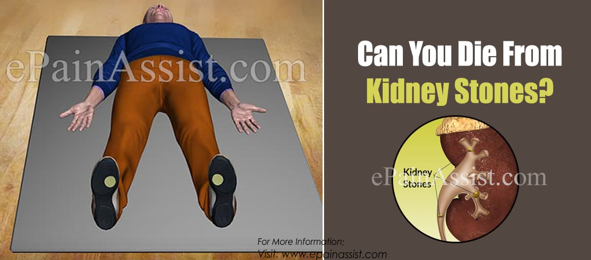 Can You Die From Kidney Stones?