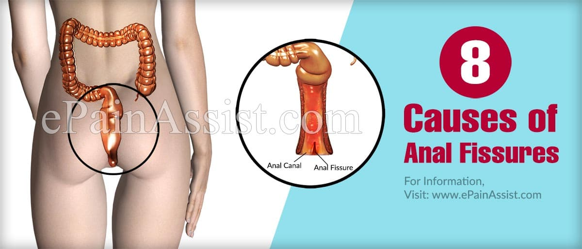 7 Causes Of Anal Fissures