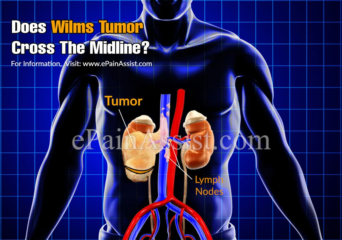 Does Wilms Tumor Cross The Midline?