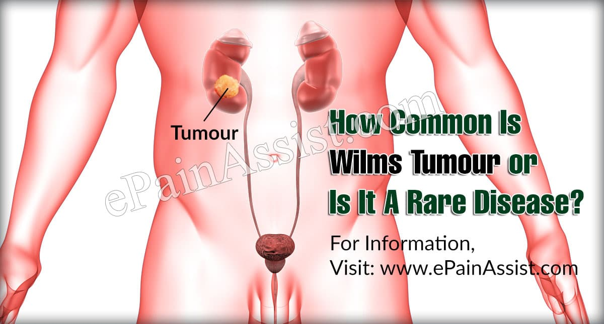 How Common Is Wilms Tumour Or Is It A Rare Disease?