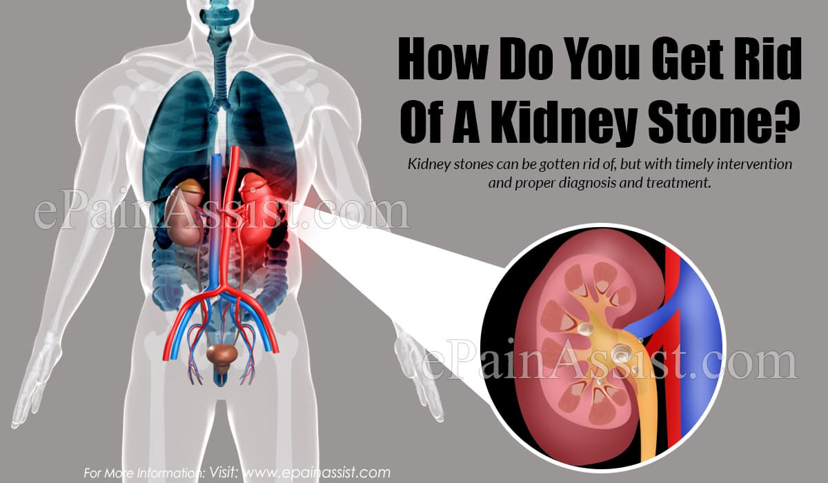 How Do You Get Rid of a Kidney Stone?