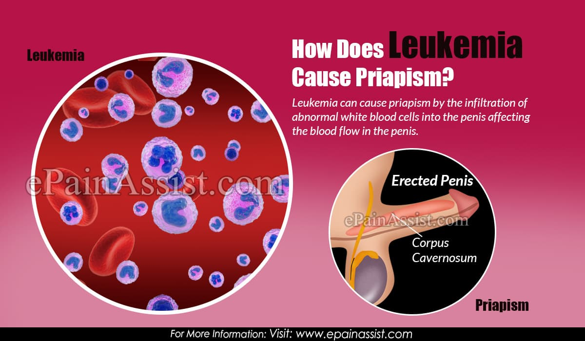 How Does Leukemia Cause Priapism?