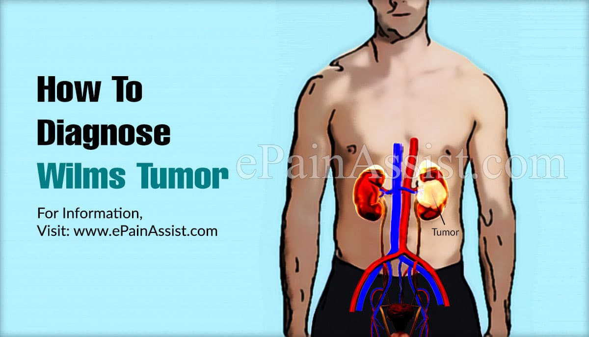 How To Diagnose Wilms Tumor?