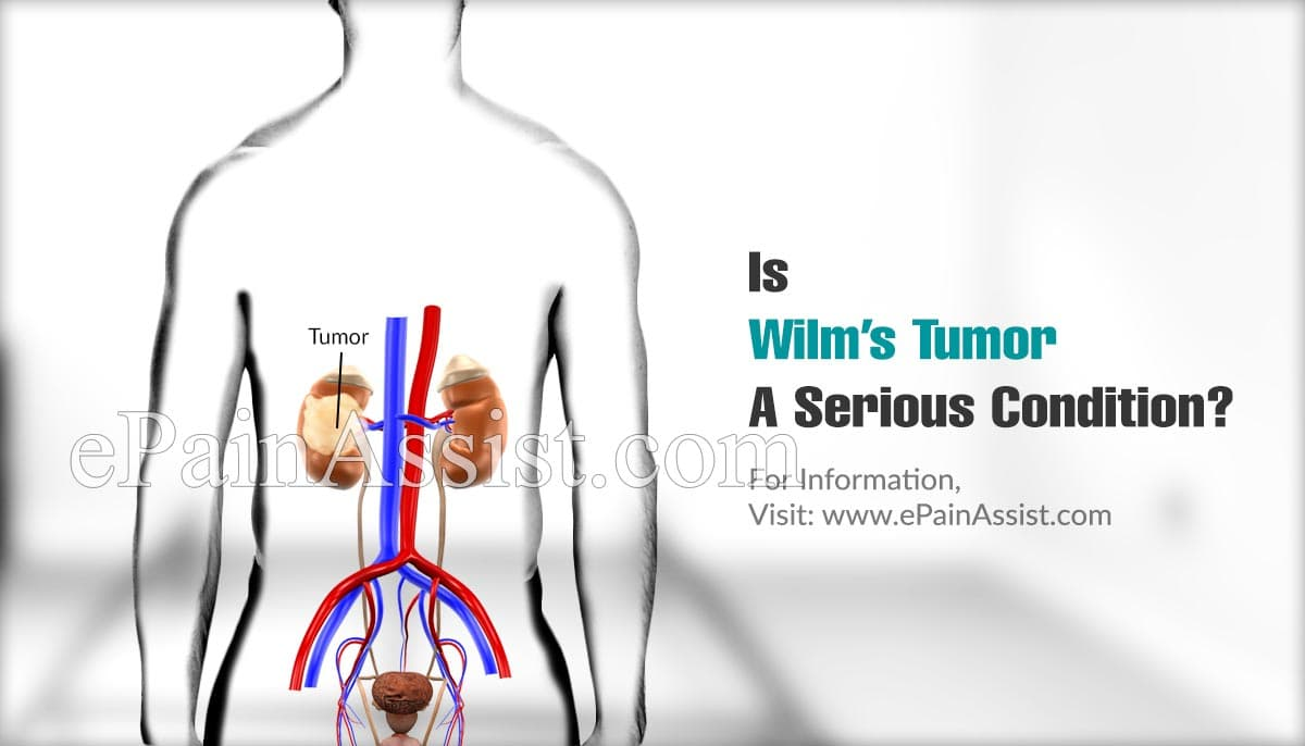 Is Wilm's Tumor A Serious Condition?